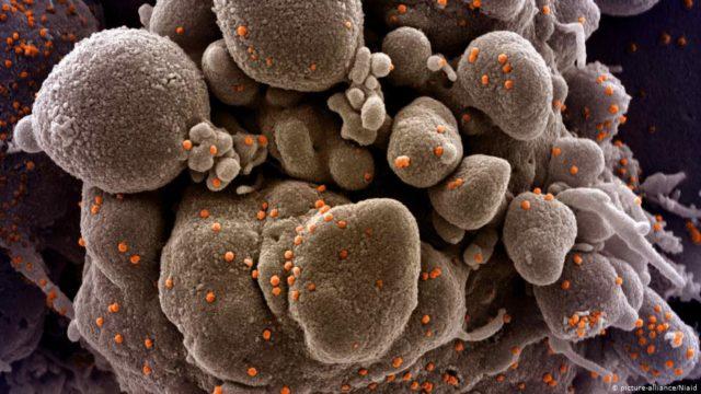 Image Virus Covid-19: Sumber: DW Indonesia